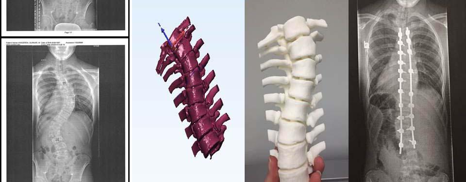 3d spine images